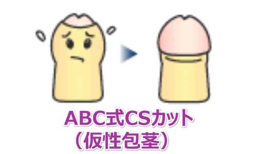 ABC式CSカット