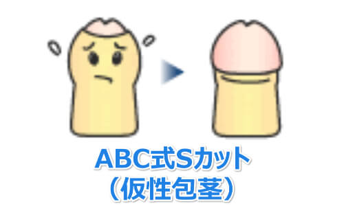 ABC式Sカット