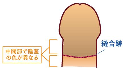 包茎手術のツートンカラー