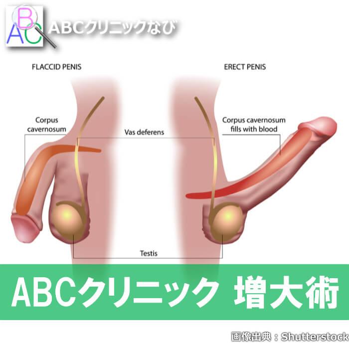 ABCクリニック 増大術