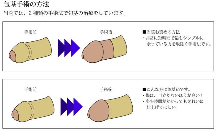 ABCクリニック 包茎手術 種類