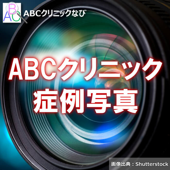 ABCクリニック 症例写真