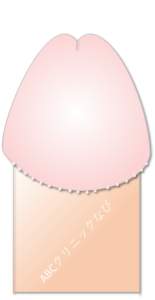 真珠様陰茎小丘疹